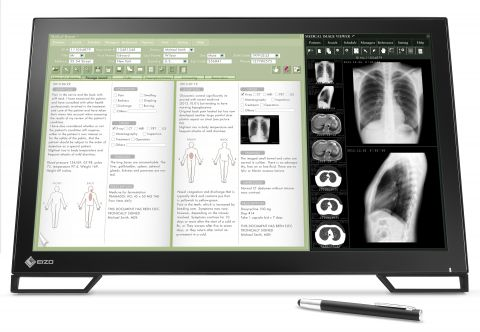 "21"" Clinical Multi-touch Touchscreen DICOM Preset"