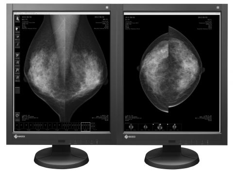 "21"" GX540 LCD Medical Display FDA 510(k) For Tomosynthesis, Mammography & General Radiography"
