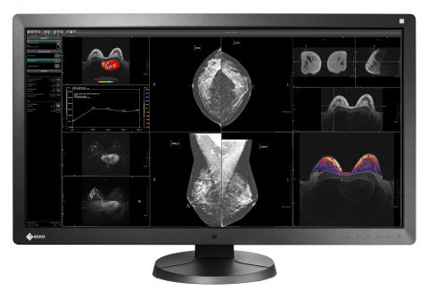 "31"" RadiForce Multi-Modality Monitor w/PACS"