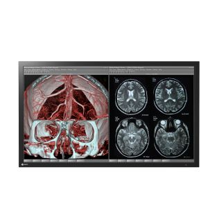"47"" Widescreen Monitor For Healthcare Applications 1920 x 1080 DICOM Part 14"